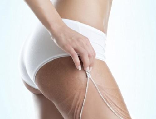 Увисване на кожата при отслабване – гледната точка на дерматолога